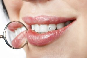 dental mouth mirror near healthy white woman teeth with precious stone on it