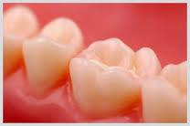 scellant dentaire